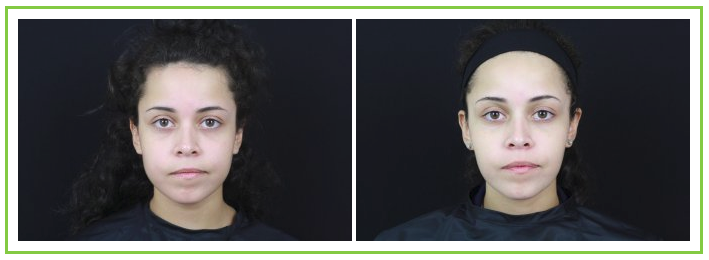 Before and after Botox Dysport treatment of masseters
