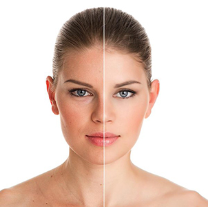Photo of female patient Before and After Botox | Miami Skin and Vein