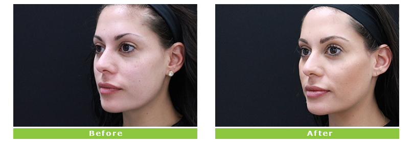 Cheek Oblique - Juvederm Treatment - Before and After