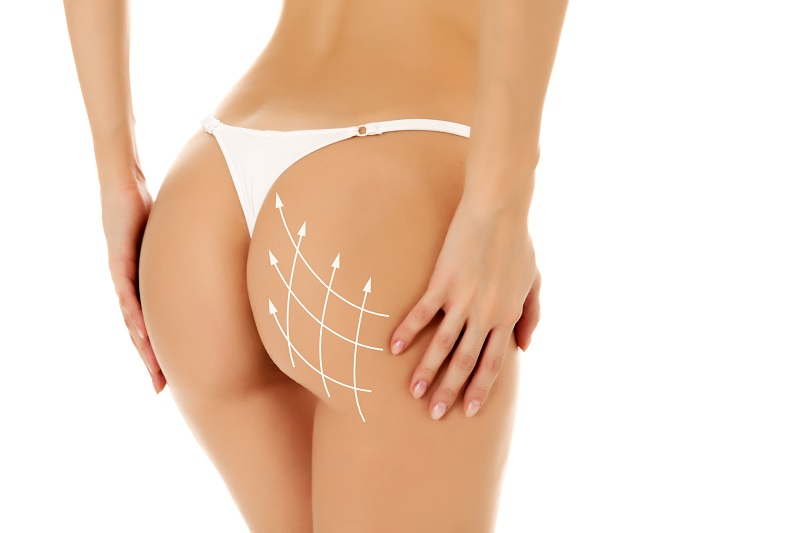 Nonsurgical butt lift with fillers