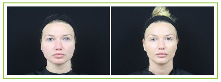 before and after photos of dysport botox for massseter muscle enlargement