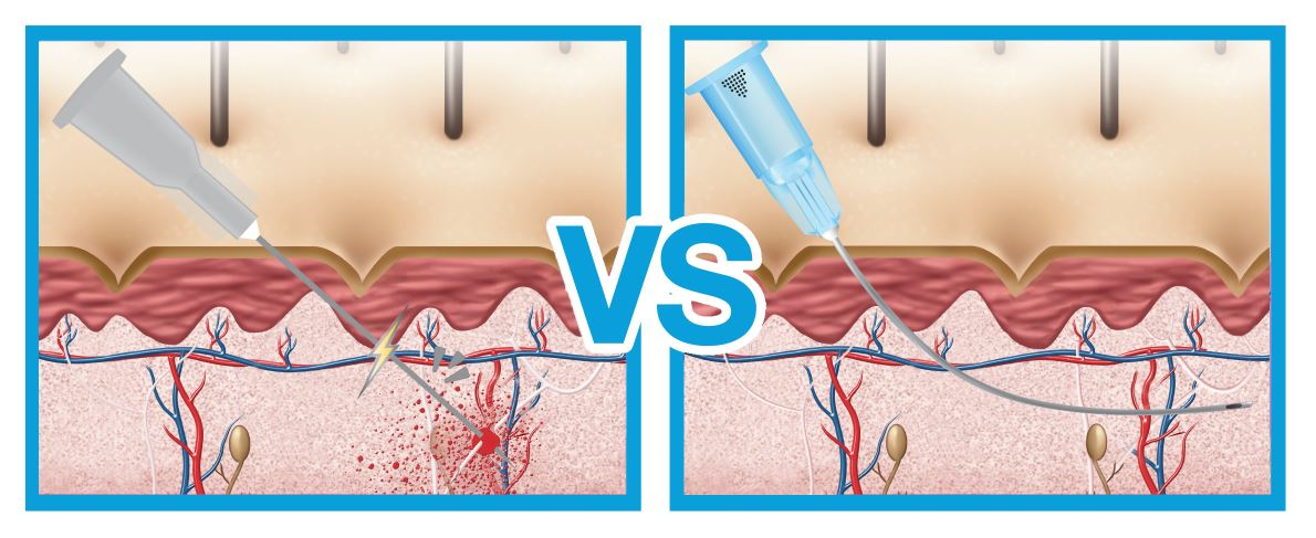 graphic demonstrating needle versus cannula for filler treatment