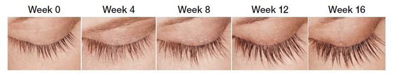 Patient eyelash growth over 16 weeks with Latisse | Miami