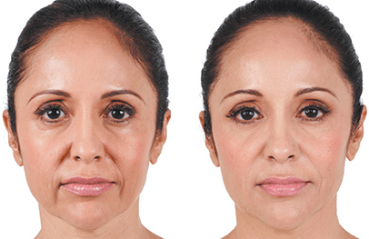 Female Juvederm Patient 1 - Before and After | Miami FL