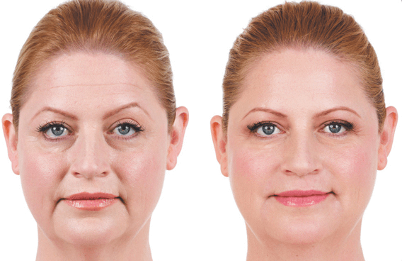 Juvederm Female Patient 2 - Before and After | Coral Gables