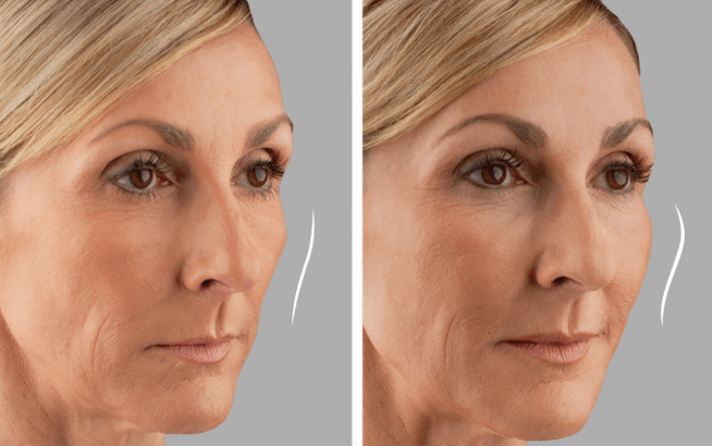 Juvederm Voluma - Before and After 2 | Female Patient