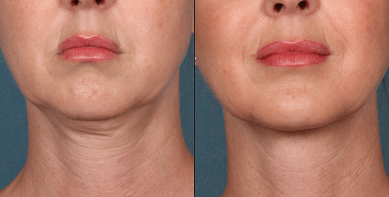 Female Patient Kybella Injection - Front - Before and After