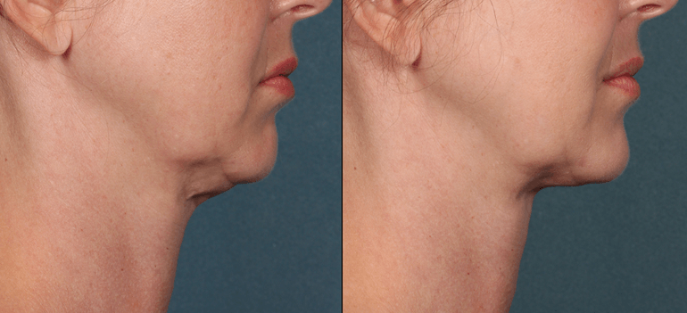 Kybella Injection - Profile view - Before and After