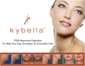 Kybella Injection For Double Chin Now Available in Miami