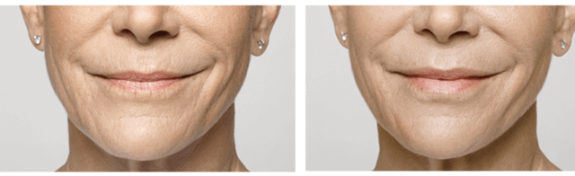 Restylane Silk - Female Patient Before and After | Miami