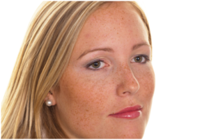 Three Types of Hyperpigmentation and How to Treat Them - Blog