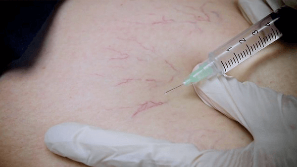 Needle entering skin for sclerotherapy treatment of spider veins