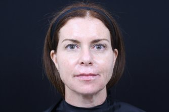 Photo taken after treatment with Restylane Refyne and Restylane Defyne to lower face