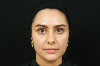 Photo taken before Restylane injections to tear troughs, medial cheeks, piriform and nasolabial folds