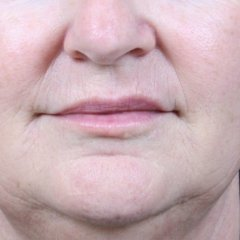 Photo taken after treatment of vertical lip lines (smokers lines, lipstick lines) using Restylane Kysse