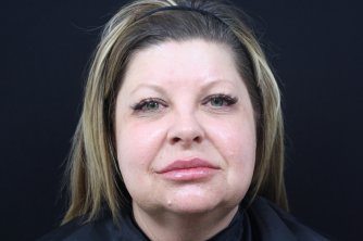 Photo taken after lip filler treatment and marionette lines treatment