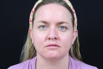 Photo taken after laser skin treatment using VBeam and Clear + Brilliant