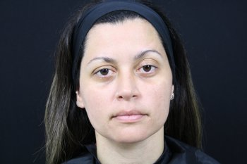 Photo taken after microneedling and PRP treatment