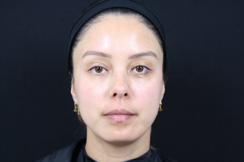 Photo taken after treating the undereyes using Restylane