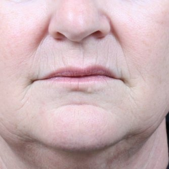 Before treatment of vertical lip lines using Restylane Kysse.