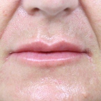 Photo taken after 1 mL of Restylane Refyne was injected into the lips