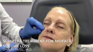 Thermage CPT for skin tightening | Video | Miami, FL