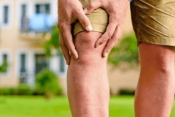 Man holding his knee | Know the symptoms of varicose veins
